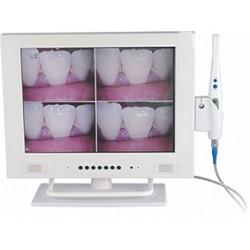 """Camara Intraoral Con Monitor Y Pabtalla LCD 15"""" R-100335"""